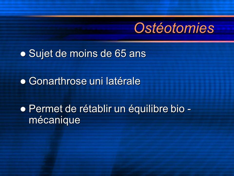 Ostéotomies Sujet de moins de 65 ans Gonarthrose uni latérale