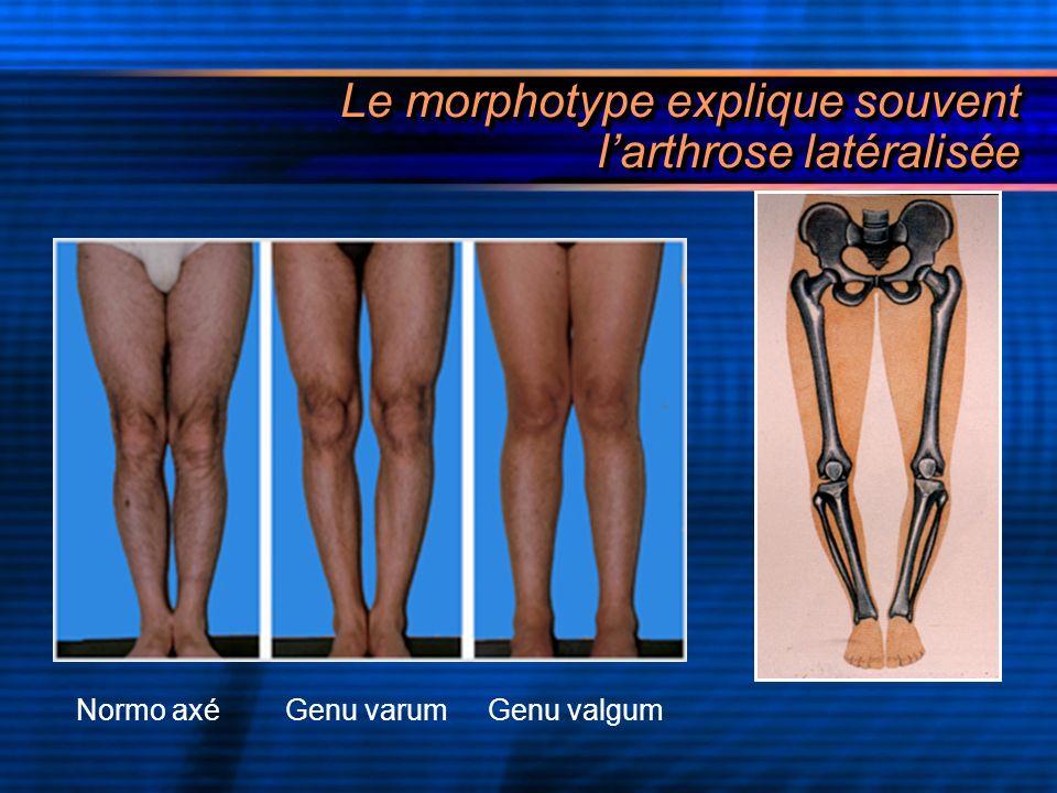 Le morphotype explique souvent l'arthrose latéralisée