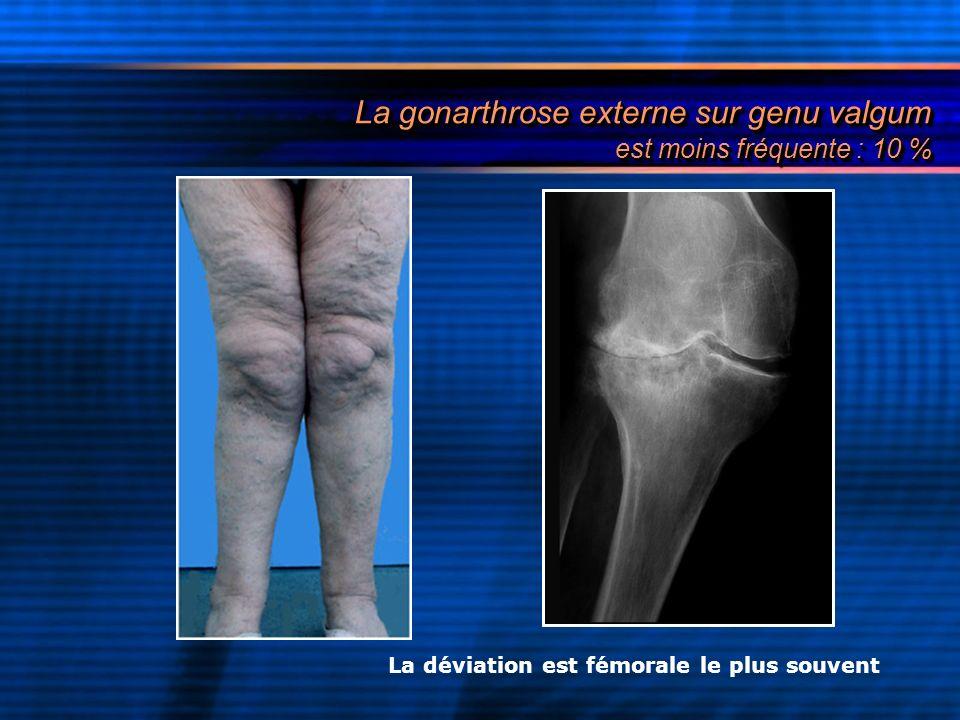 La gonarthrose externe sur genu valgum est moins fréquente : 10 %