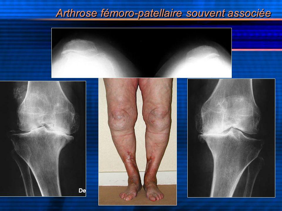 Arthrose fémoro-patellaire souvent associée