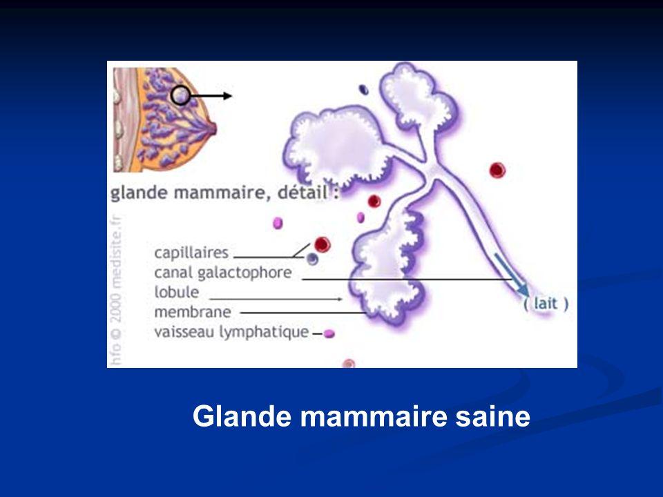 Glande mammaire saine