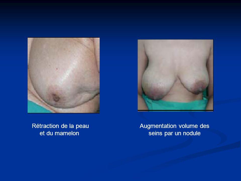 Augmentation volume des seins par un nodule