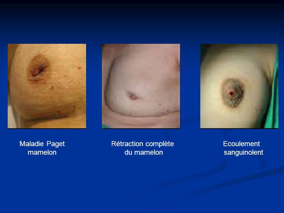 Maladie Paget mamelon Rétraction complète du mamelon Ecoulement sanguinolent