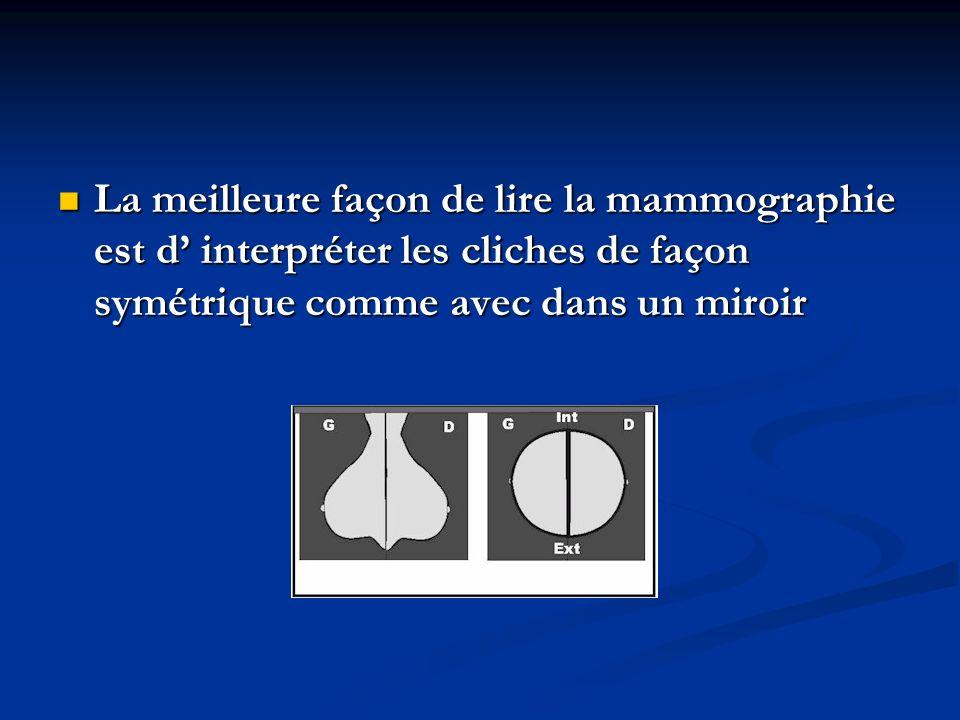 La meilleure façon de lire la mammographie est d' interpréter les cliches de façon symétrique comme avec dans un miroir