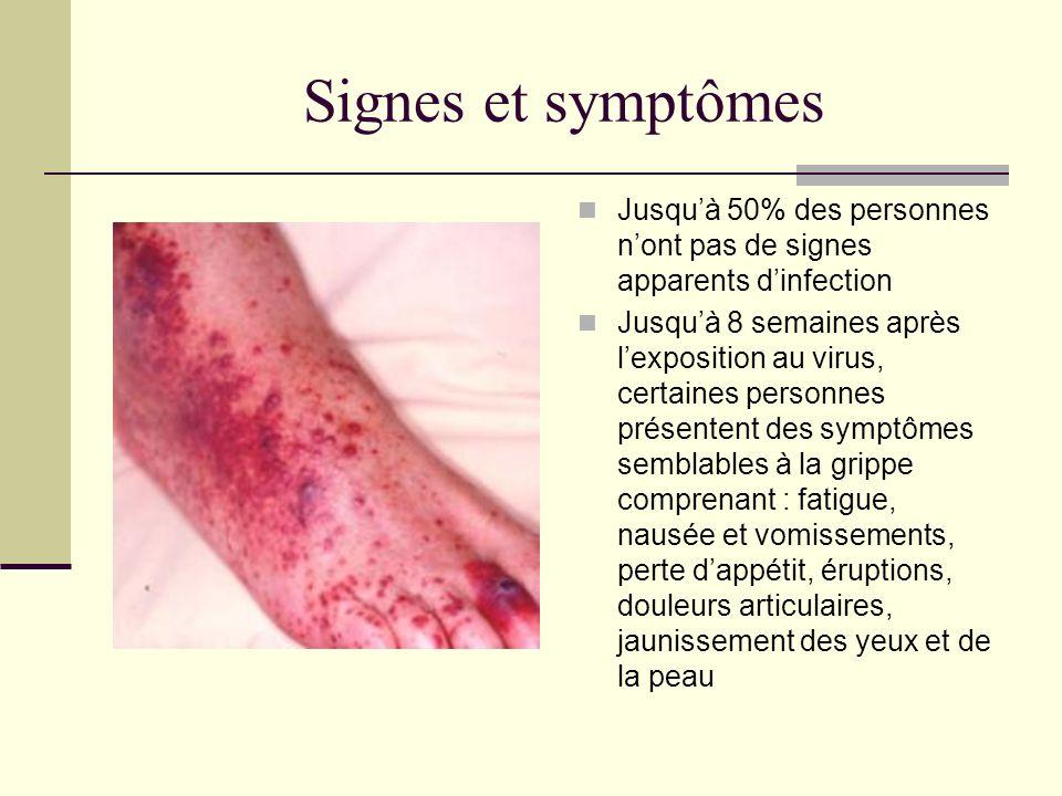 Signes et symptômes Jusqu'à 50% des personnes n'ont pas de signes apparents d'infection.
