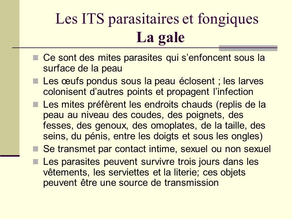 Les ITS parasitaires et fongiques La gale