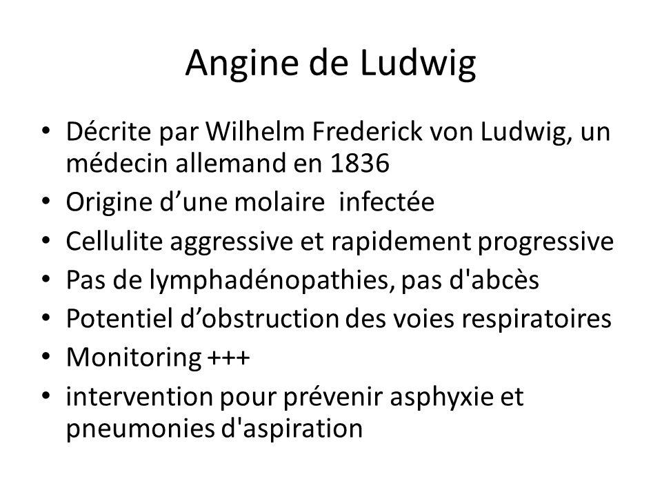 Angine de Ludwig Décrite par Wilhelm Frederick von Ludwig, un médecin allemand en 1836. Origine d'une molaire infectée.