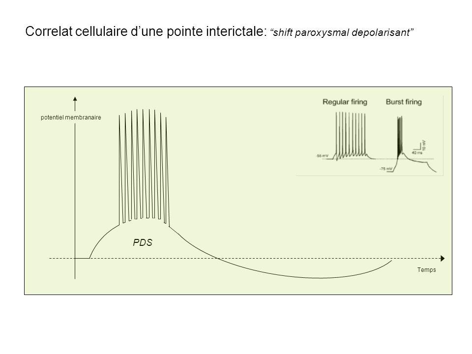 Correlat cellulaire d'une pointe interictale: shift paroxysmal depolarisant