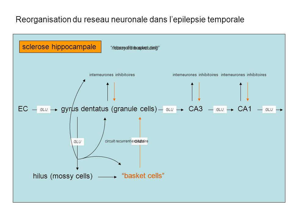 Reorganisation du reseau neuronale dans l'epilepsie temporale