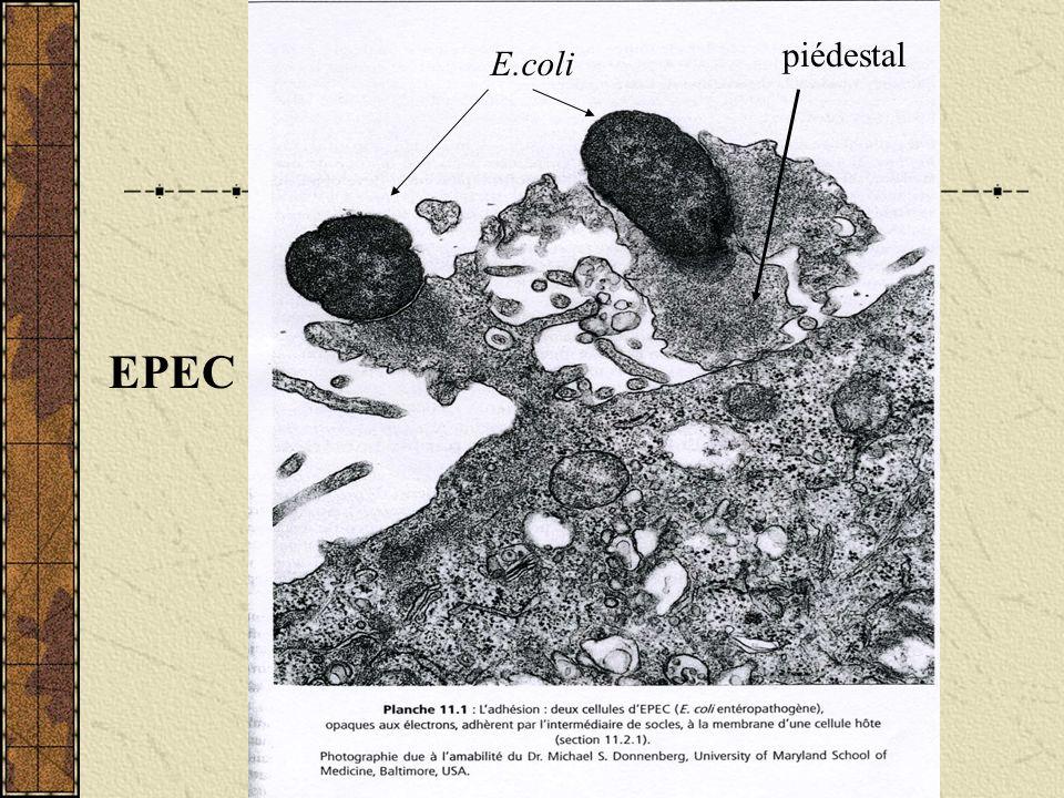 piédestal E.coli EPEC