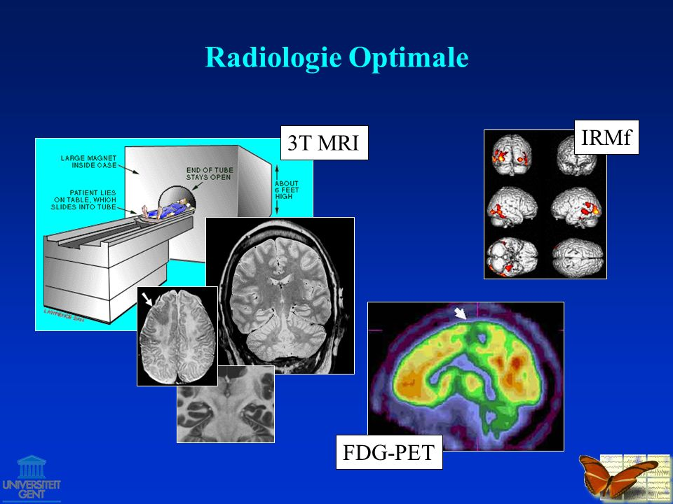 Radiologie Optimale IRMf 3T MRI FDG-PET