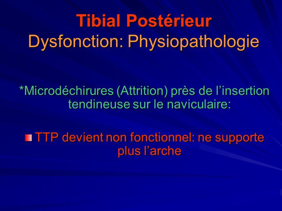 Tibial Postérieur Dysfonction: Physiopathologie
