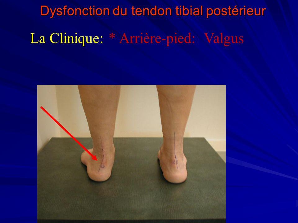 Dysfonction du tendon tibial postérieur