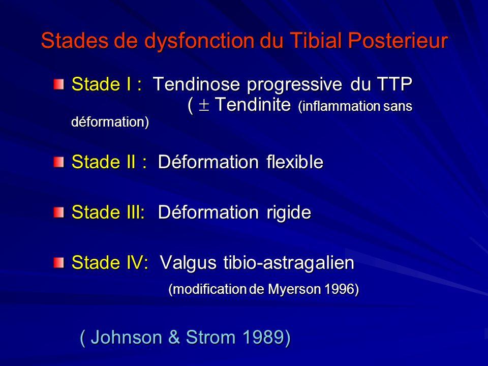 Stades de dysfonction du Tibial Posterieur