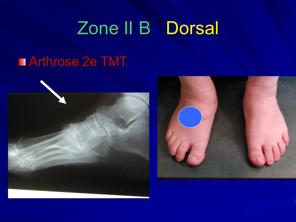 Zone II B Dorsal Arthrose 2e TMT