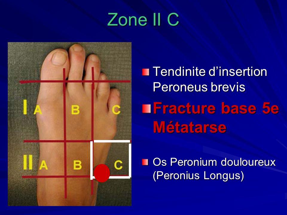 Zone II C Fracture base 5e Métatarse