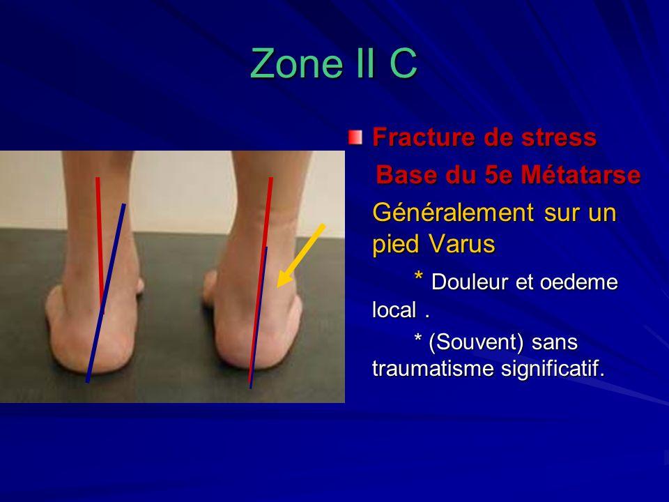 Zone II C Fracture de stress Base du 5e Métatarse
