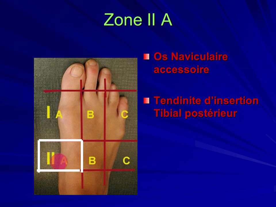 Zone II A Os Naviculaire accessoire