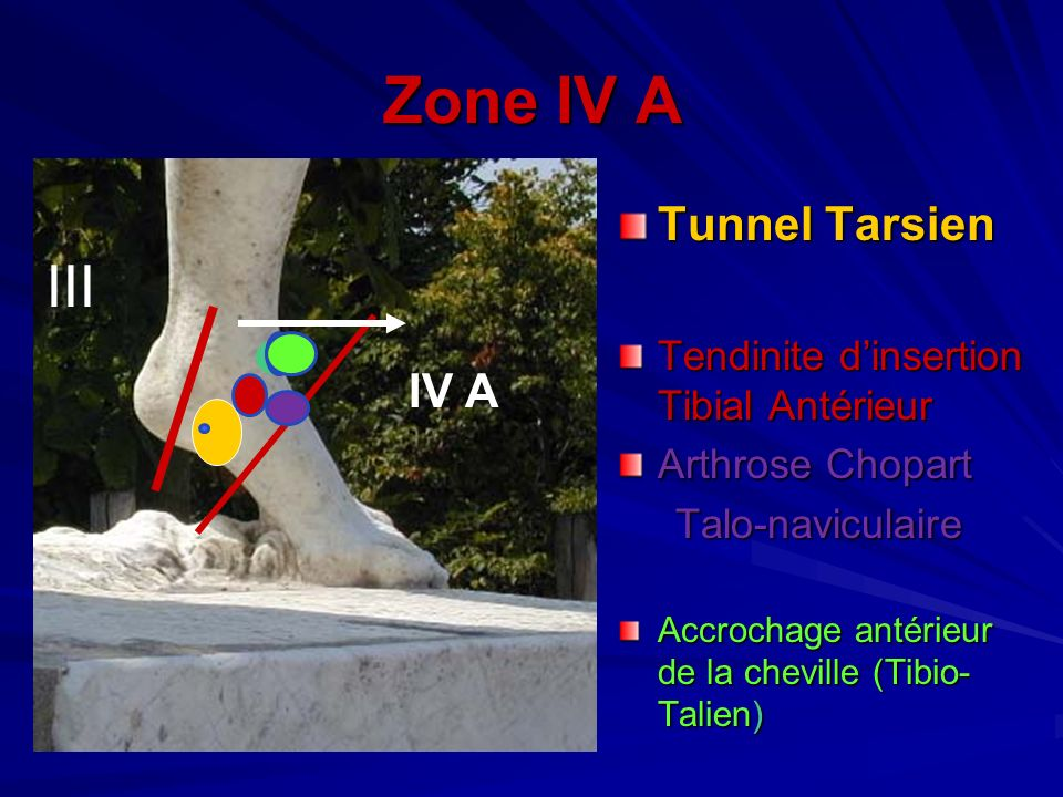 Zone IV A III Tunnel Tarsien IV A