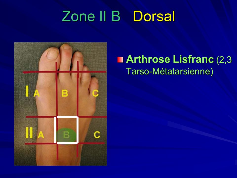 Zone II B Dorsal Arthrose Lisfranc (2,3 Tarso-Métatarsienne)