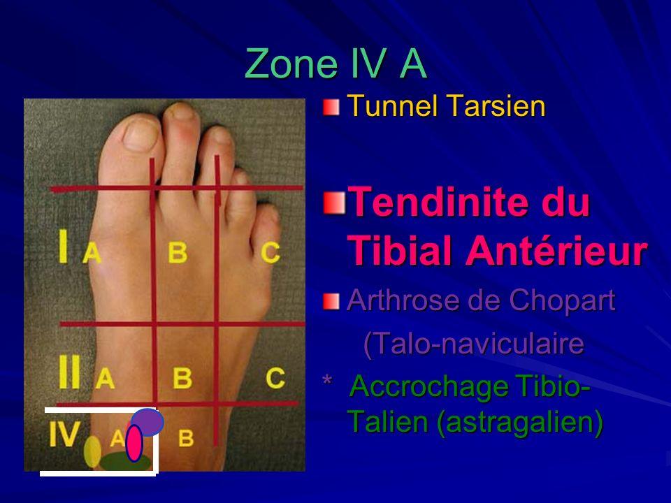 Tendinite du Tibial Antérieur
