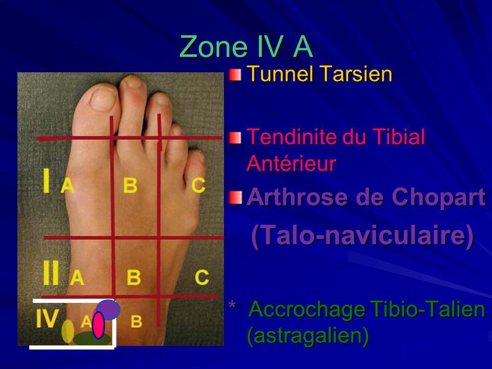 Zone IV A (Talo-naviculaire) Arthrose de Chopart Tunnel Tarsien