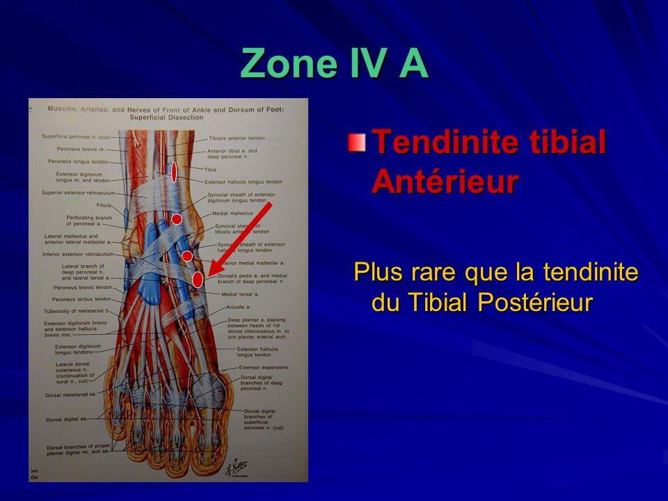 Zone IV A Tendinite tibial Antérieur