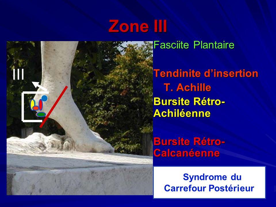 SSyndrome du Carrefour Postérieur