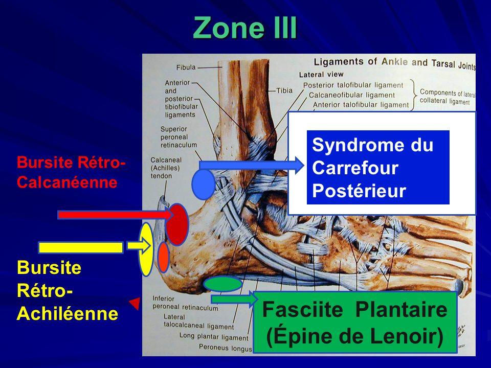 Zone III Fasciite Plantaire (Épine de Lenoir) Syndrome du Carrefour