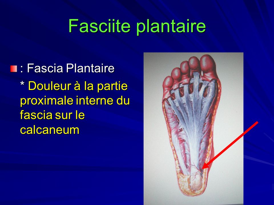 Fasciite plantaire : Fascia Plantaire