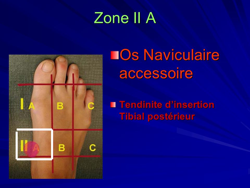 Os Naviculaire accessoire