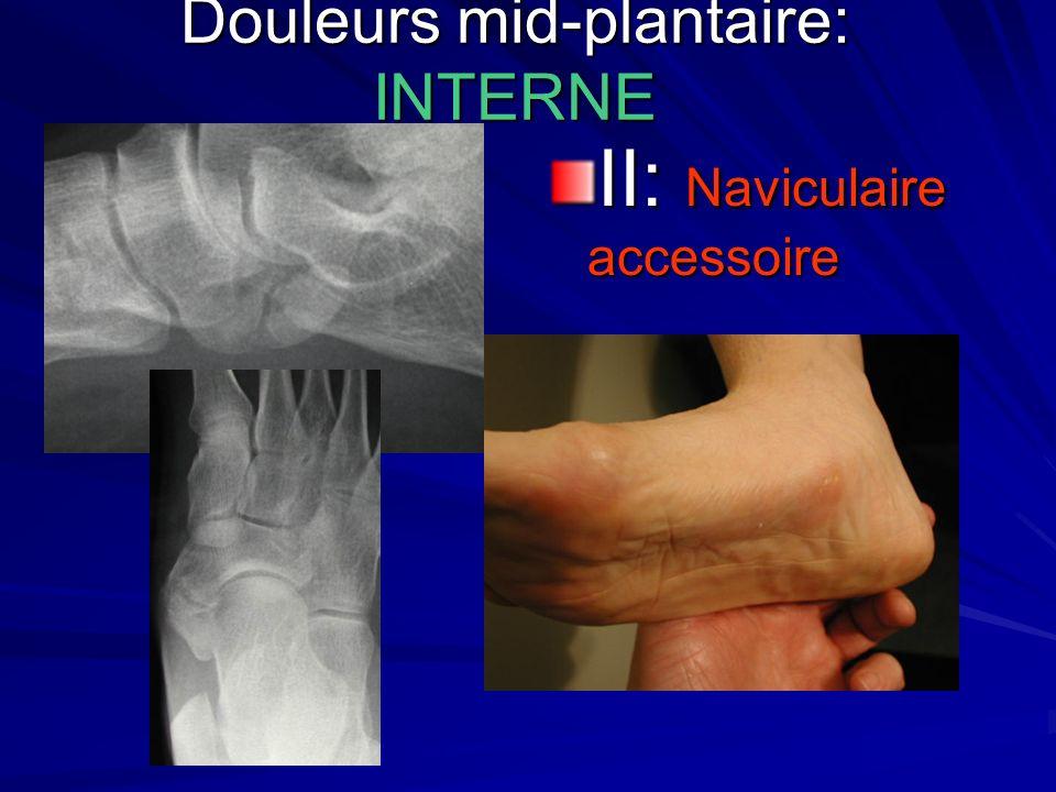 Douleurs mid-plantaire: INTERNE