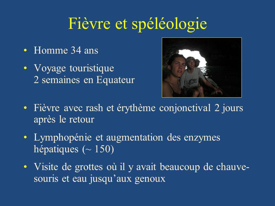 Fièvre et spéléologie Homme 34 ans