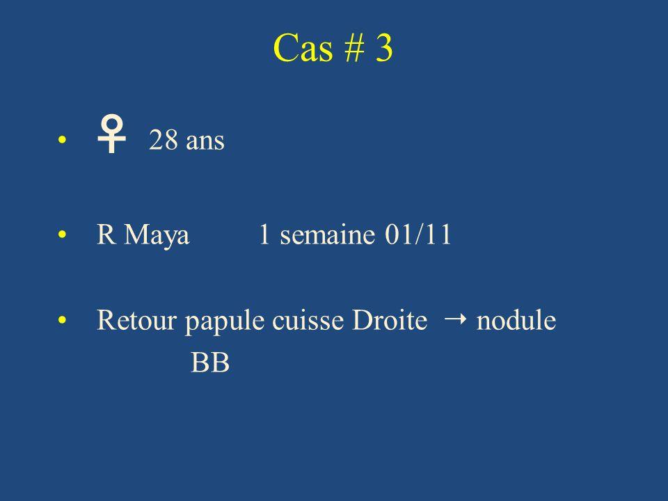 Cas # 3 ♀ 28 ans R Maya 1 semaine 01/11