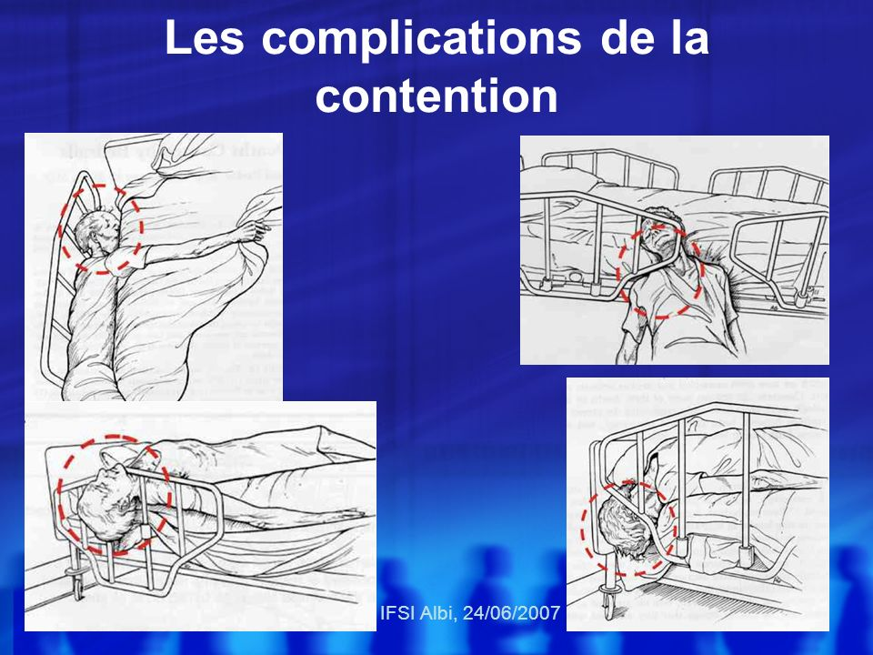 Les complications de la contention