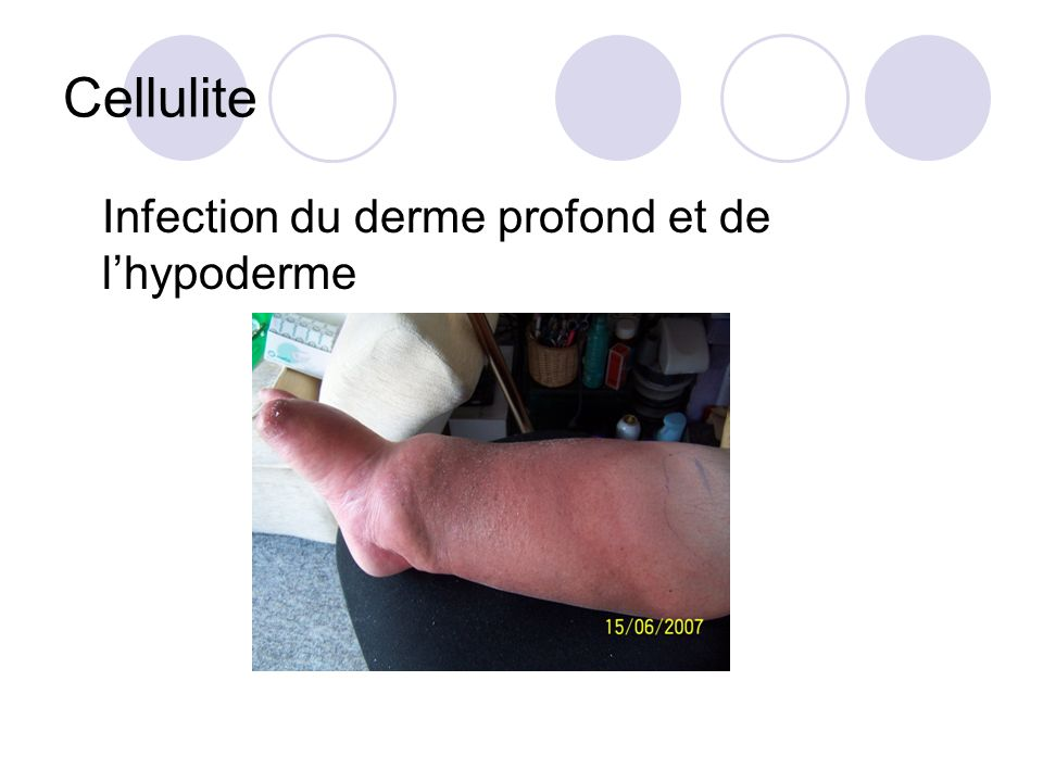 Cellulite Infection du derme profond et de l'hypoderme