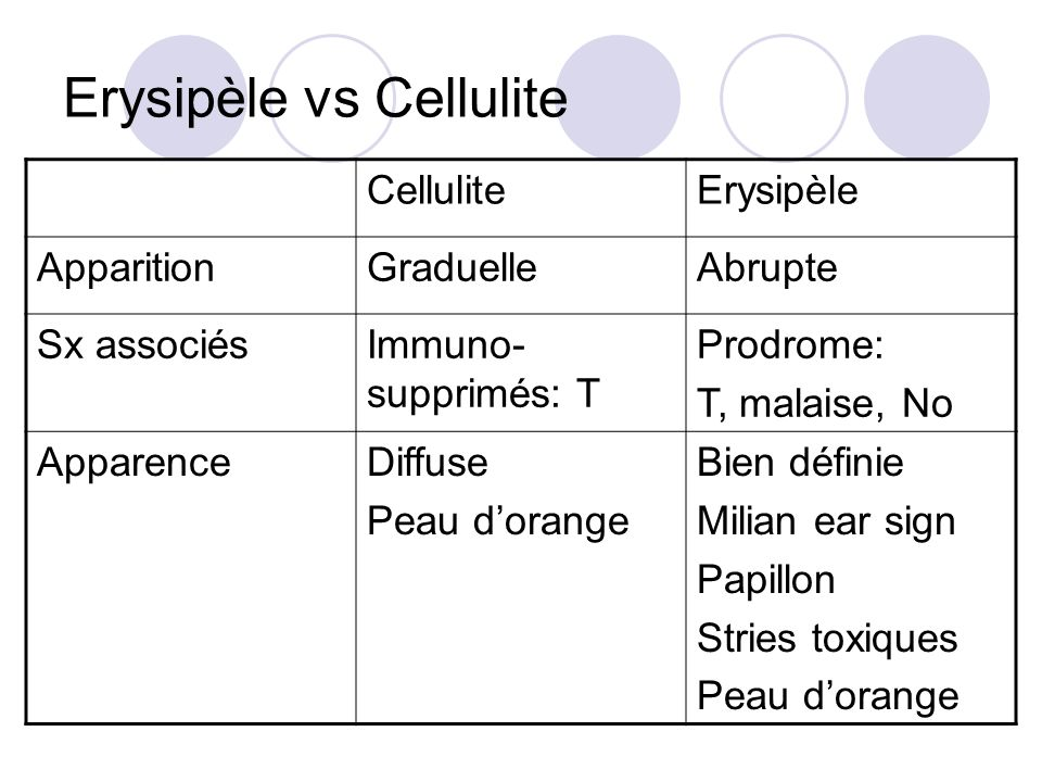 Erysipèle vs Cellulite