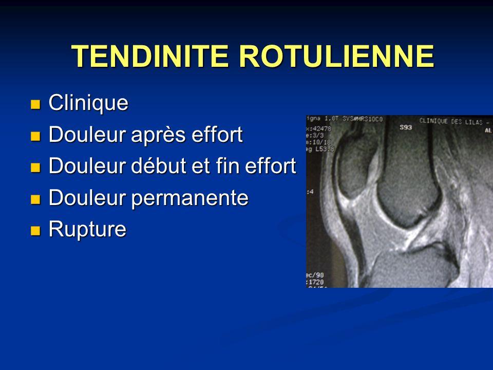 TENDINITE ROTULIENNE Clinique Douleur après effort