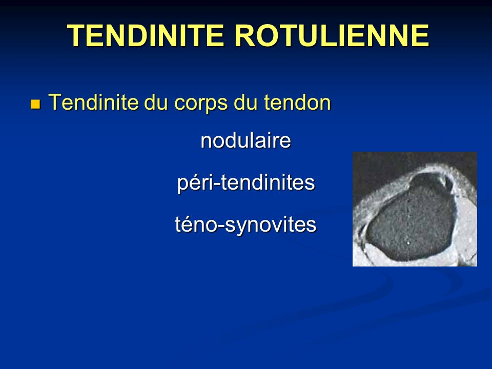 TENDINITE ROTULIENNE Tendinite du corps du tendon nodulaire