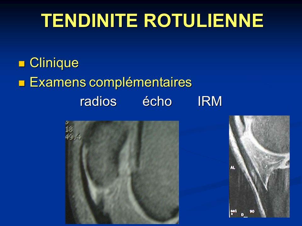 TENDINITE ROTULIENNE Clinique Examens complémentaires radios écho IRM