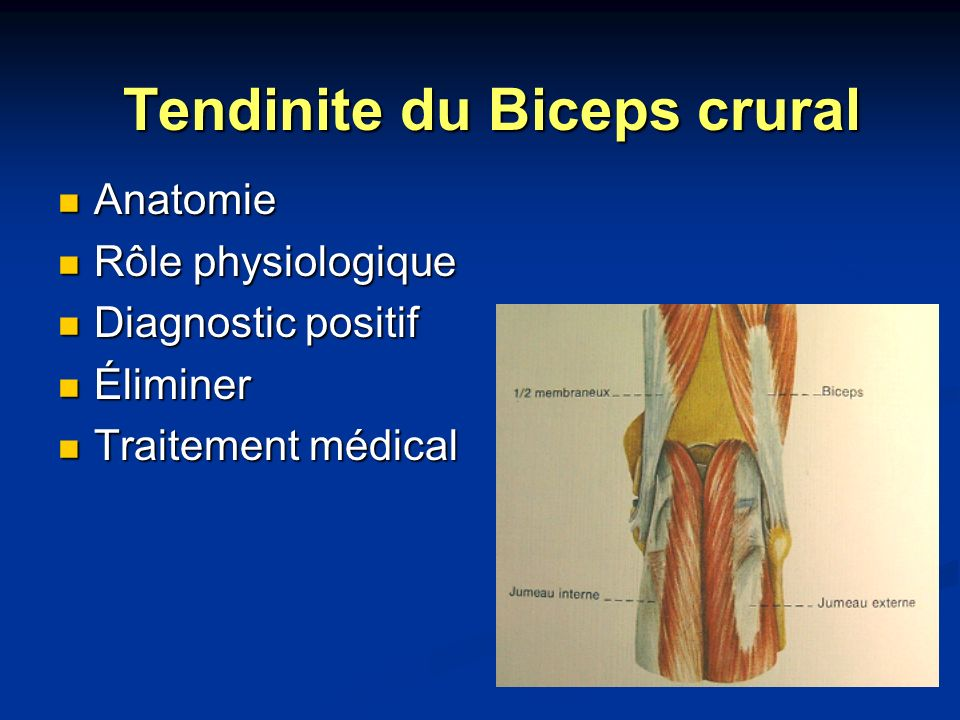 Tendinite du Biceps crural