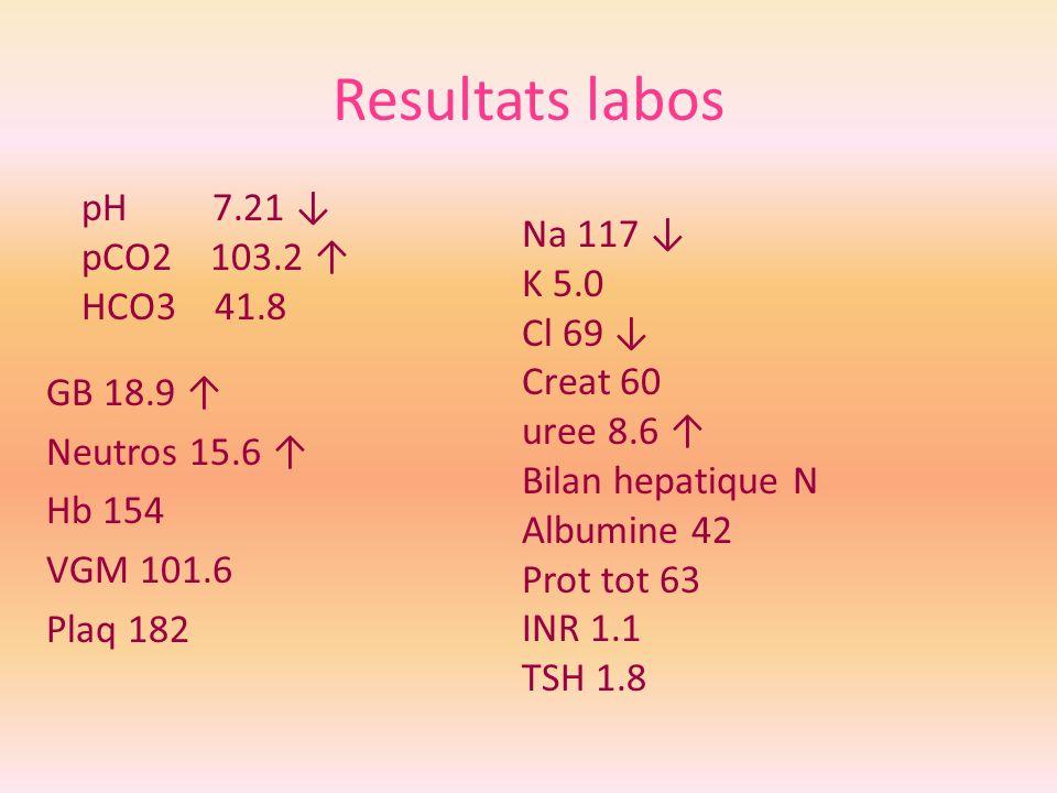 Resultats labos pH 7.21 ↓ pCO2 103.2 ↑ Na 117 ↓ HCO3 41.8 K 5.0