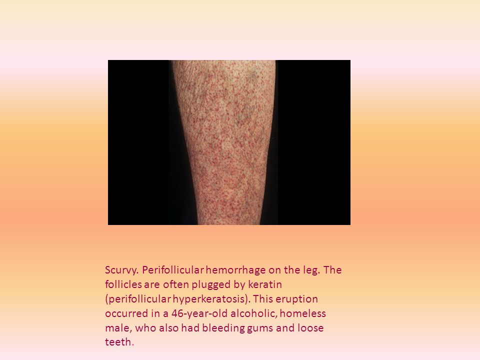 Scurvy. Perifollicular hemorrhage on the leg
