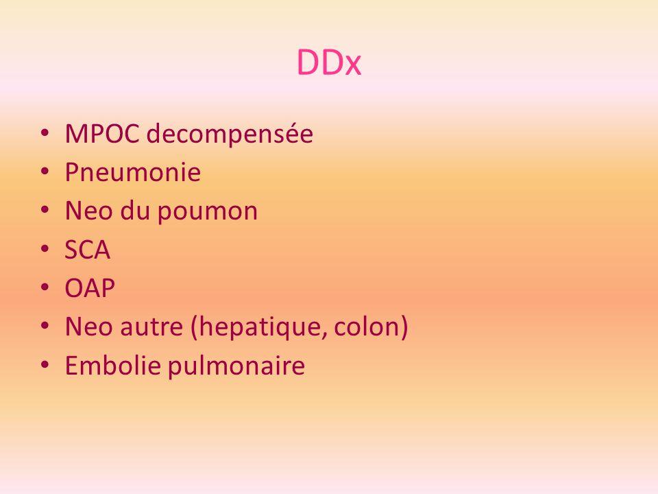 DDx MPOC decompensée Pneumonie Neo du poumon SCA OAP