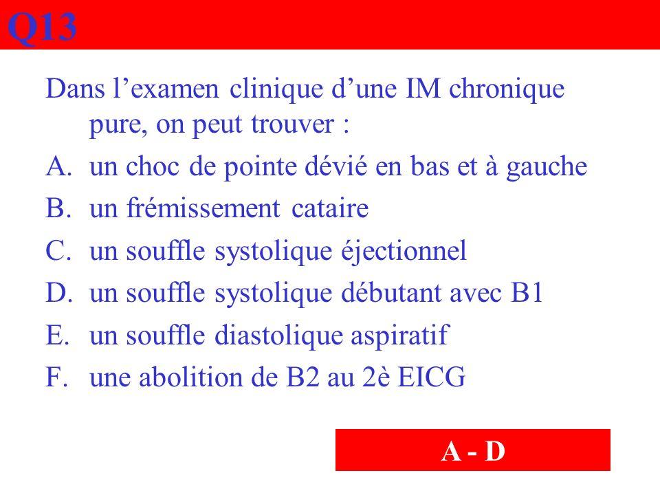 Q13 Dans l'examen clinique d'une IM chronique pure, on peut trouver :