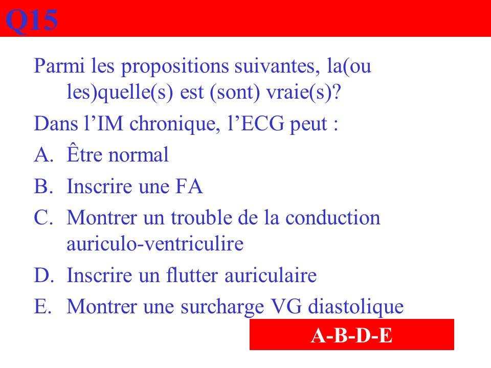 Q15 Parmi les propositions suivantes, la(ou les)quelle(s) est (sont) vraie(s) Dans l'IM chronique, l'ECG peut :