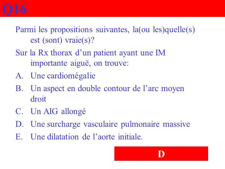 Q16 Parmi les propositions suivantes, la(ou les)quelle(s) est (sont) vraie(s)