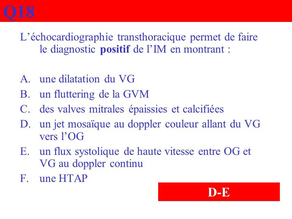 Q18 L'échocardiographie transthoracique permet de faire le diagnostic positif de l'IM en montrant :
