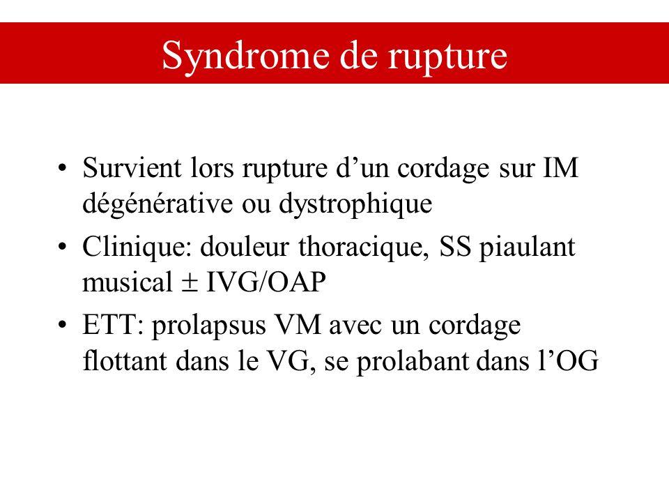 Syndrome de rupture Survient lors rupture d'un cordage sur IM dégénérative ou dystrophique.