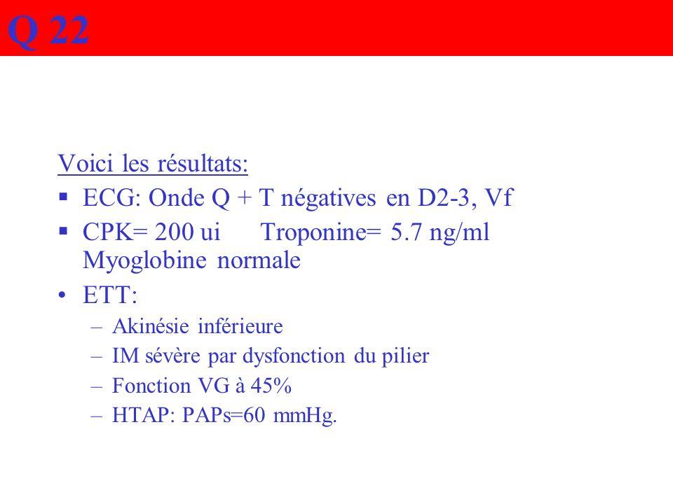 Q 22 Voici les résultats: ECG: Onde Q + T négatives en D2-3, Vf
